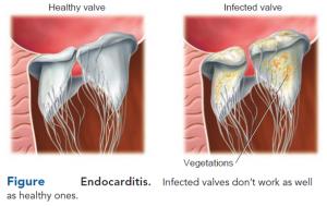 Endocarditis-symptoms,diagnosis and treatment