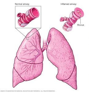 ASTHMA: THE OVERVIEW.