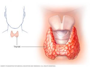 THYRODISM: OVERVIEW