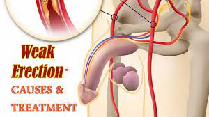 Weak Erection Causes and Symptoms
